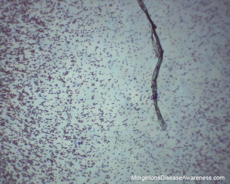 Morgellons Disease Awareness Live Blood Microscopy In A