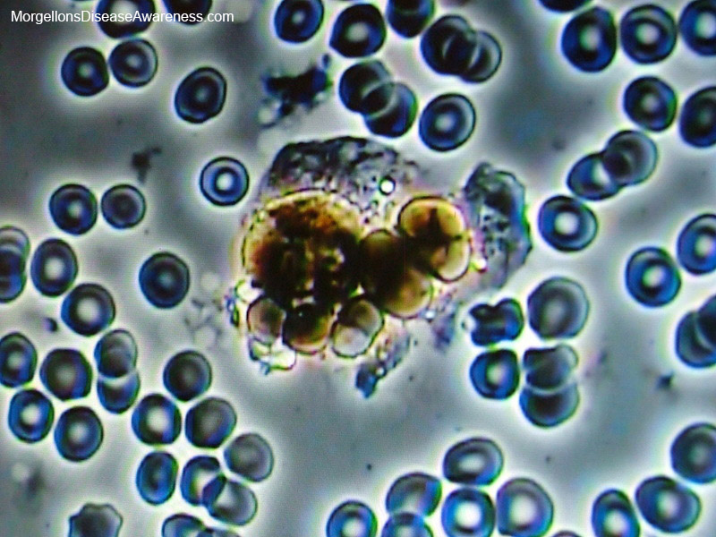 Above: Parasites in the red blood cells.